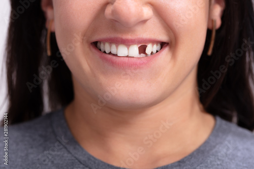 Fotografija  Woman With Missing Tooth