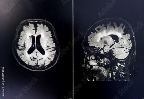 Photo brain MRI for education Dementia Mix type stroke VaD