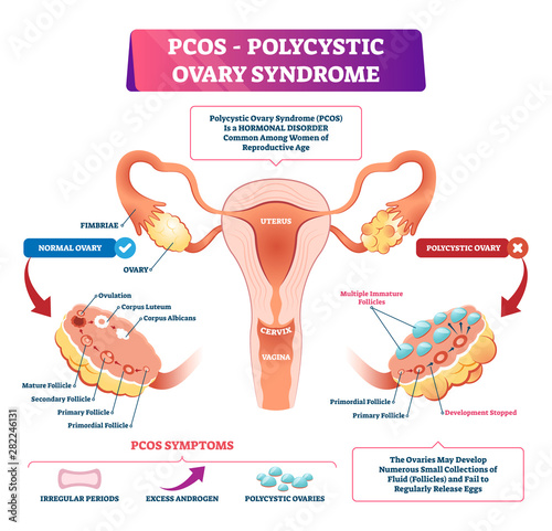 Vászonkép Polycystic ovary syndrome vector illustration
