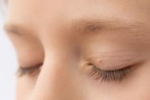 Close Up Of Wart On Eyelid. Yo...