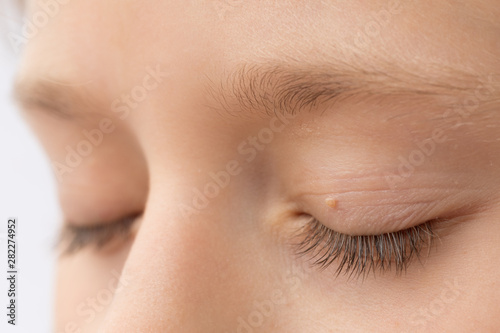 Obraz Close up of wart on eyelid. Young girl with papillomas on skin around eye, macro - fototapety do salonu