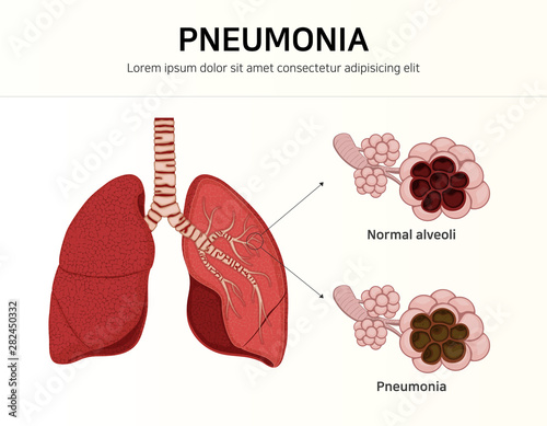 Photo Pneumonia. normal and infected alveoli