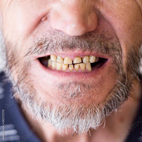 abrasion of teeth in an elderly man Canvas Print