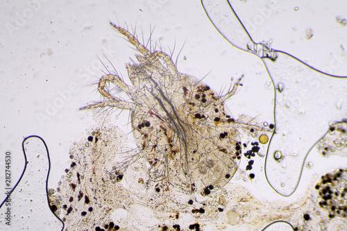 Spider mite under the microscope Canvas Print