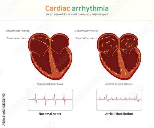 Cardiac arrhythmia Wallpaper Mural