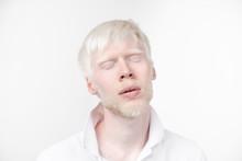 Portrait Of An Albino Man In  ...
