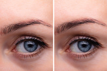 Eyebrows Before And After Lift...