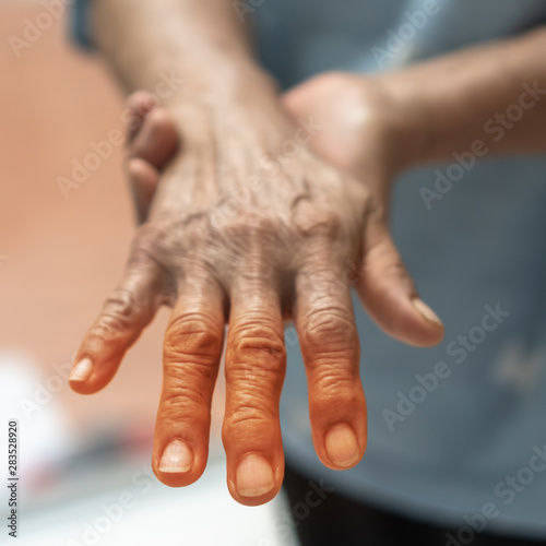 Peripheral Neuropathy pain in elderly ageing patient on hand, palm, fingers, joi Canvas-taulu