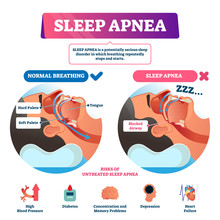 Sleep Apnea Vector Illustratio...