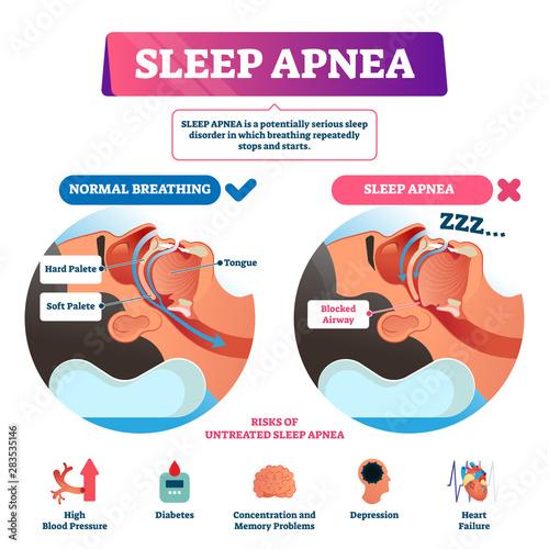 Sleep apnea vector illustration Canvas Print