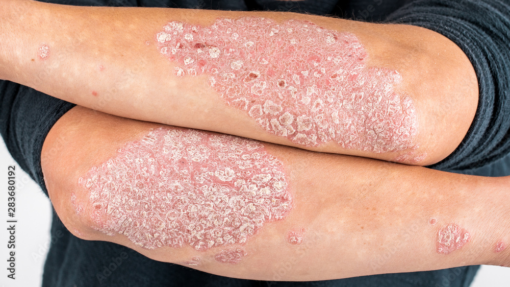 Fototapeta Man with sick hands, dry flaky skin on his hand with vulgar psoriasis, eczema and other skin diseases such as fungus, plaque, rash and blemishes. Autoimmune genetic disease