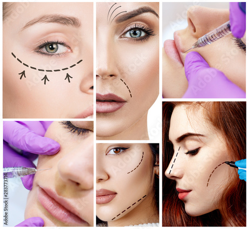 Collage of beautiful girl on rejuvenation procedure in beauty clinic. #283773714