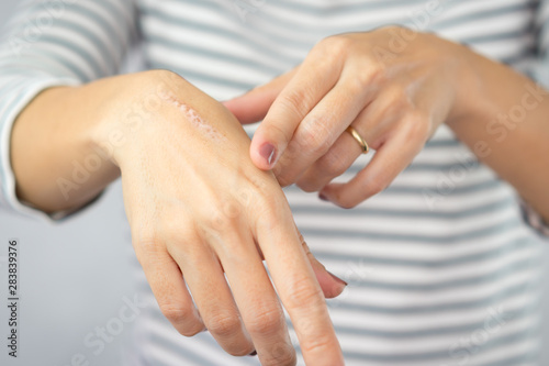 Fototapeta Close up of cooking oil burn scar on a woman's hands
