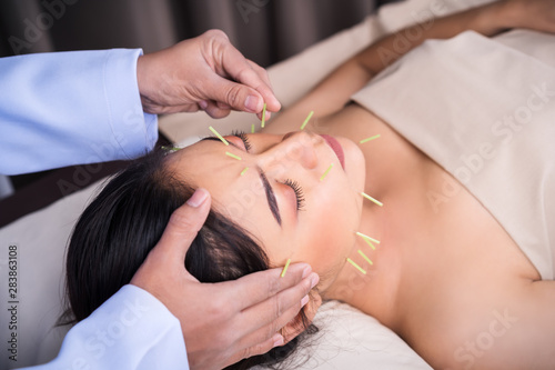 woman undergoing acupuncture treatment on face Wallpaper Mural