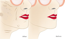 Wrinkles And Aging In A Woman