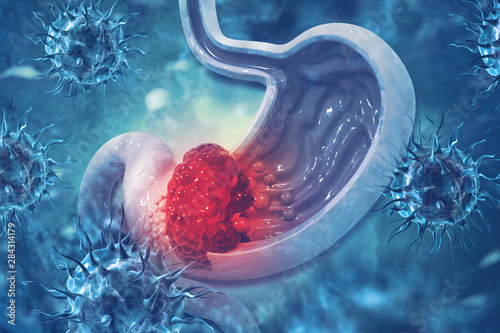 Fotomural  Stomach cancer. Cancer attacking cell. Stomach disease concept