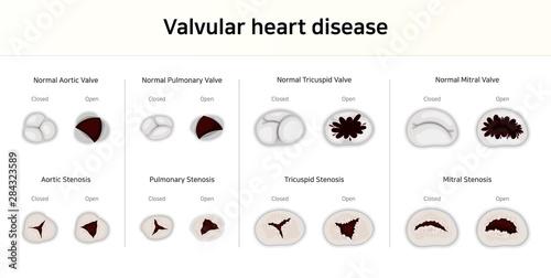 Valvular heart disease. valvular stenosis Wallpaper Mural