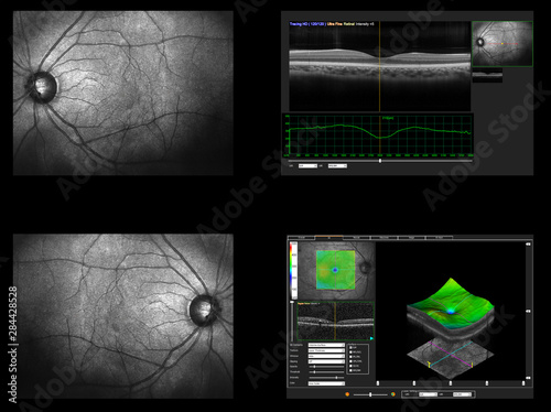Cuadros en Lienzo  Ophthalmic test - OCT optical coherence tomography measurement