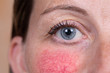 canvas print picture - A closeup view on the face of a young woman suffering with rosacea on her cheeks and beneath her nose. Red blotches and prominent blood vessels are seen in detail.