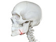 3d rendered medically accurate illustration of a broken jaw