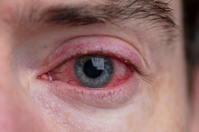 Close Up Of A Severe Bloodshot Eye. Blepharitis, Conjunctivitis Condition