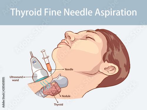 Fotografia, Obraz Fine Needle Aspiration of Thyroid Nodules
