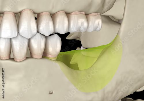 Mandibular Jaw, bone recession after losing molars teeth Canvas Print