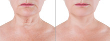 Skin Rejuvenation On The Neck,...