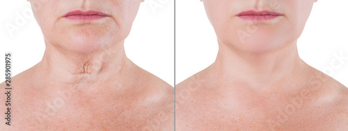 Photo Skin rejuvenation on the neck, before after anti aging concept, wrinkle treatmen