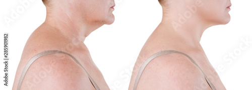 Cuadros en Lienzo Skin rejuvenation on the neck, before after anti aging concept, wrinkle treatmen