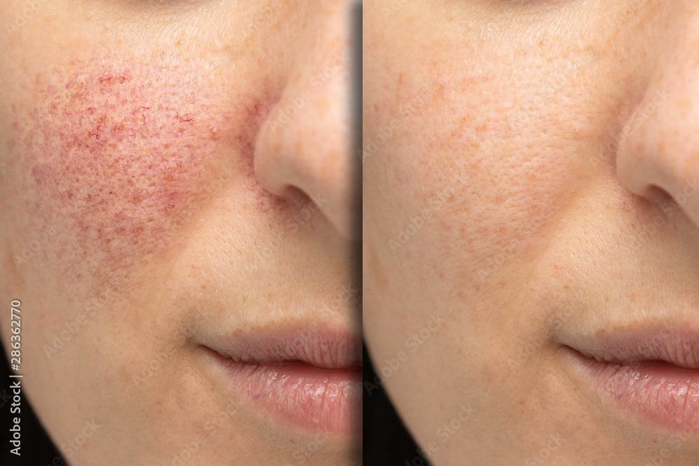Fototapeta Before and after laser treatment for rosacea