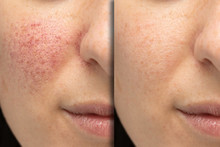 Before And After Laser Treatment For Rosacea