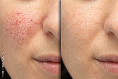 Fotografía  Before and after laser treatment for rosacea