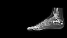 Film Ankle X-ray Radiograph Sh...