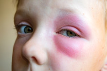 Big Red Bruise Under The Boy?s Eyes After A Bee Sting