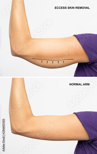 Fototapeta  arm with excess skin and arm with normal skin, Before and after under arm excess