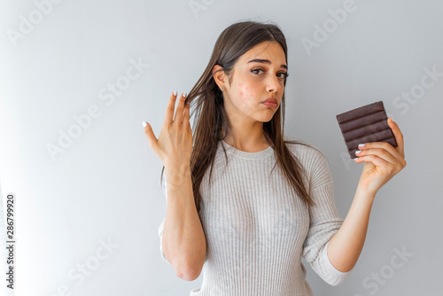 Photo Closeup Acne Problem Face Woman Eating Chocolate bar