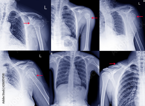 Fototapeta Collection Film x ray shoulder radiograph show shoulder dislocation and bone broken (neck of humerus fracture) from accident Highlight on arrow point
