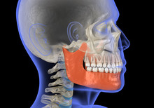 Human Head In Xray View And Marked Jaw. Medically Accurate 3D Illustration