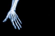 X-ray Image Of Hand With Copy ...