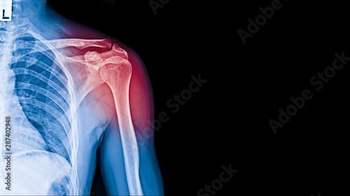 Fotomural  X-ray image of shoulder pain, shoulder ligament tendinitis, shoulder muscle strain