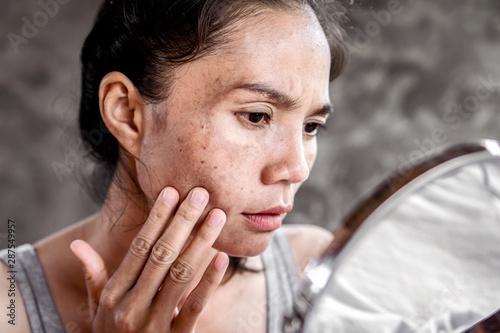 Fotografie, Obraz  sad Asian woman having skin problem checking her face with dark spot, freckle fr