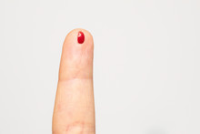 A Closeup View On The Small Blood Drop On A Caucasian Finger, Caused By A Lancet Needle Prick For A Glucometer Device, Measuring Sugar Levels In The Body.