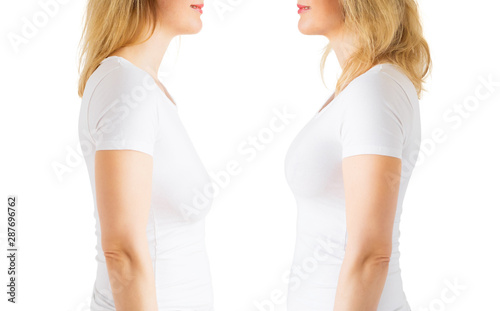 Woman before and after breast lift enhancement plastic surgery Canvas Print