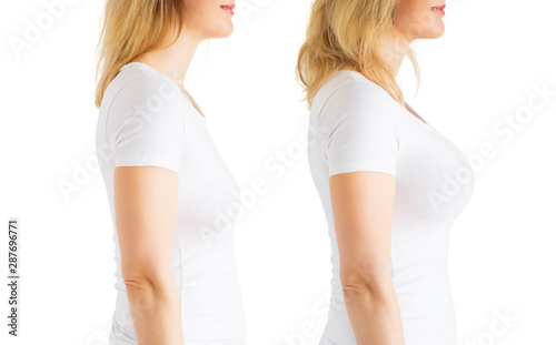 Woman before and after breast augmentation plastic surgery Wallpaper Mural