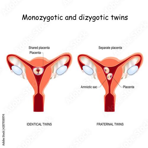 Fényképezés  Twins in uterus. Monozygotic and Dizygotic