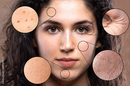 Obraz A close up portrait of a beautiful young caucasian girl. Magnified circles show problem areas of the skin causing stress and worry in millennials. - fototapety do salonu