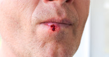 Herpes Infection On The Lips. Wound With Blood On Man's Face. Medical Care Photo.