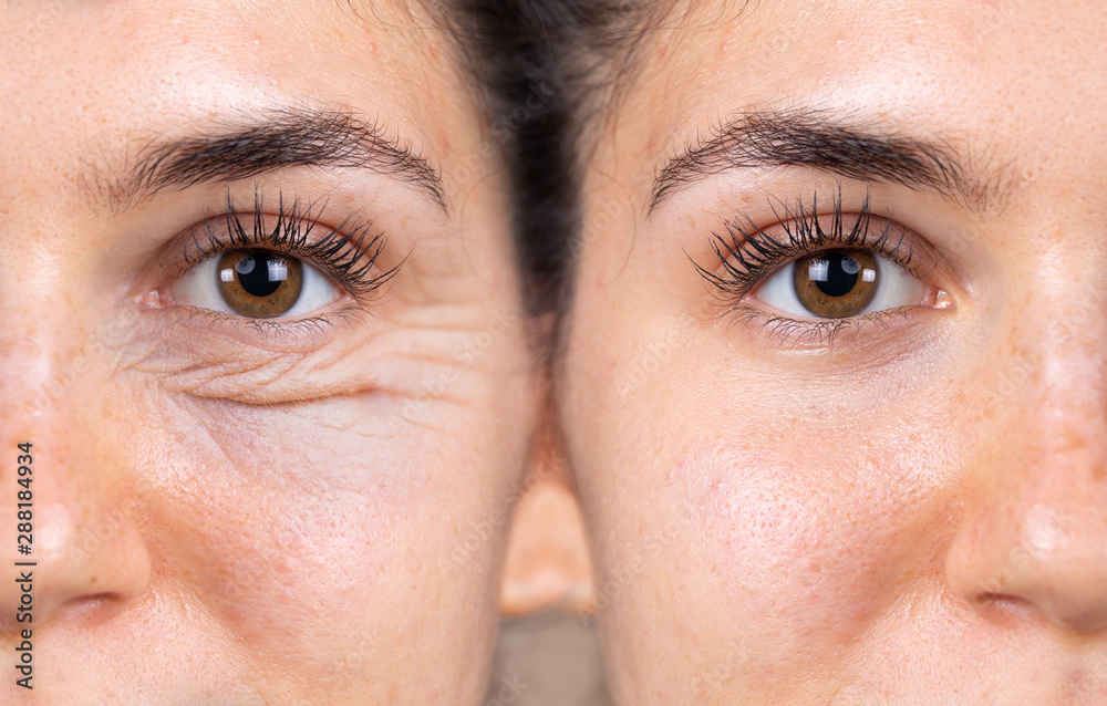 Fototapeta A young woman shows the before and after results of successful blepharoplasty surgery, corrective procedure to remove puffy and swollen bags beneath the eye.