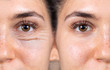 Leinwandbild Motiv A young woman shows the before and after results of successful blepharoplasty surgery, corrective procedure to remove puffy and swollen bags beneath the eye.